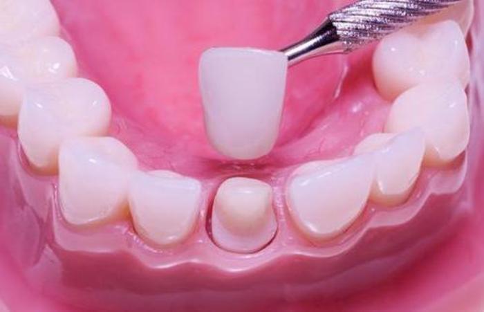 где купить виниры на зубы спб