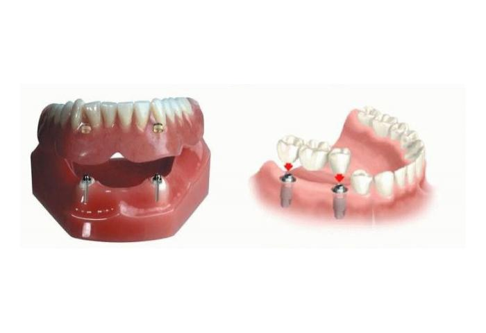 Зубы штифты или мосты