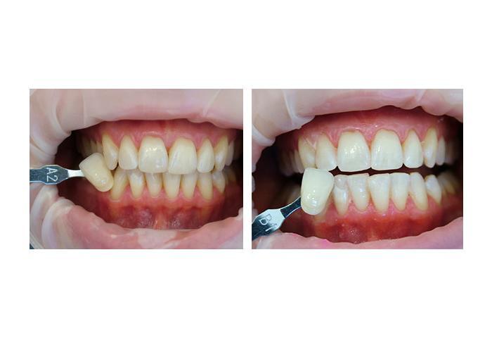 Кабинетное отбеливание зубов лампой