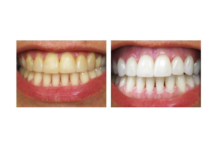 Как сделать очень белые зубы