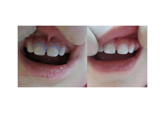 Картинки по запросу серебрение зубов