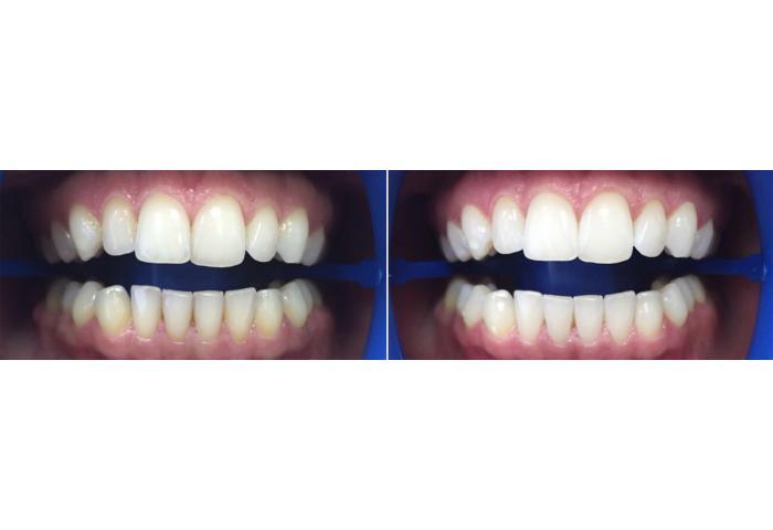 На зубы под небольшим давлением наносится водно-воздушная смесь с абразивным порошком тонкой фракции.