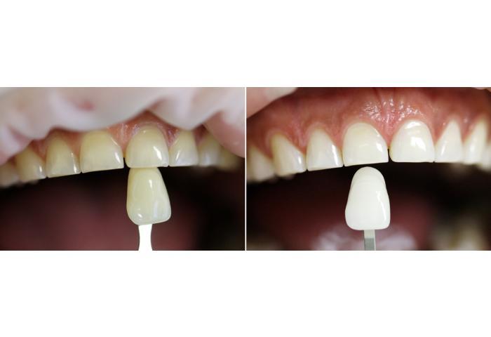 Отбеливание зубов гелем rocs