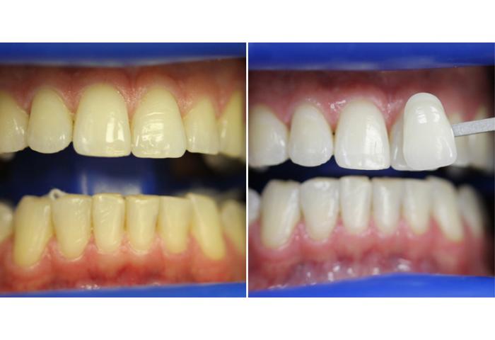 Отбеливание зубов zoom все свои