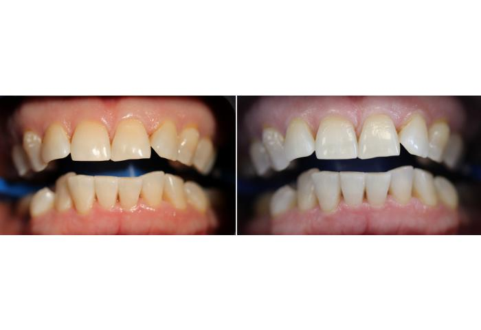 Отбеливание зубов с спб цены