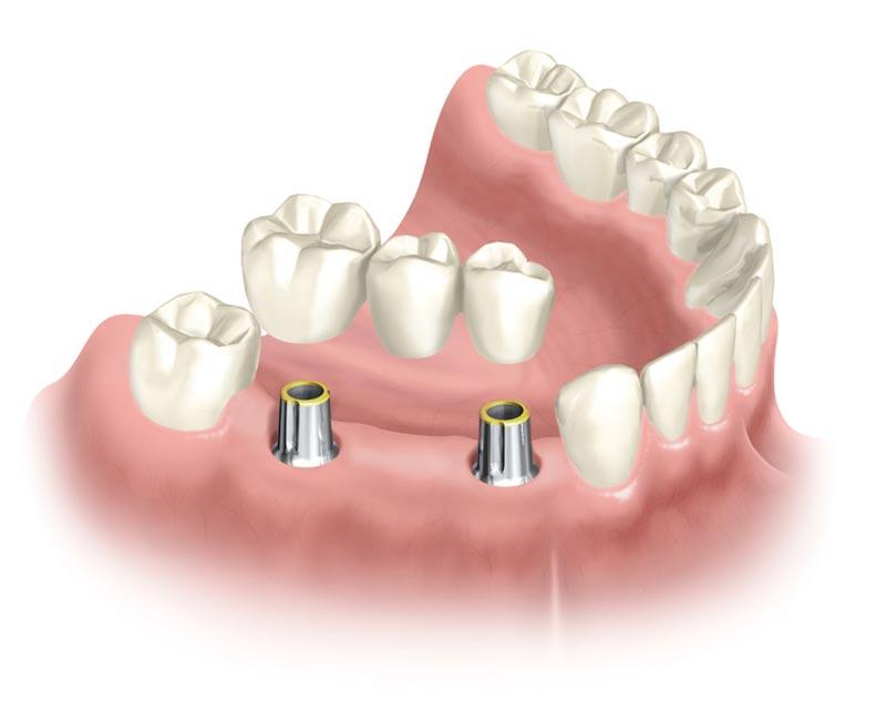 Несъемные зубные протезы в картинках