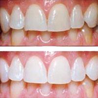 13... Заболевания зубов - методы лечения народными средствами.  Что делать перед удалением зуба.