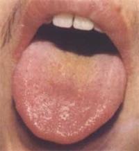 сильный запах изо рта у подростка причины
