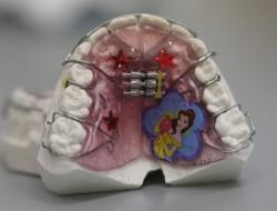 виниры на зубы процесс установки