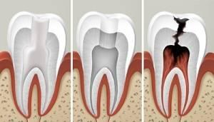 Сколько может простоять зуб без нерва