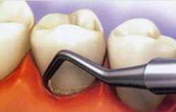 изготовление капп для отбеливания зубов